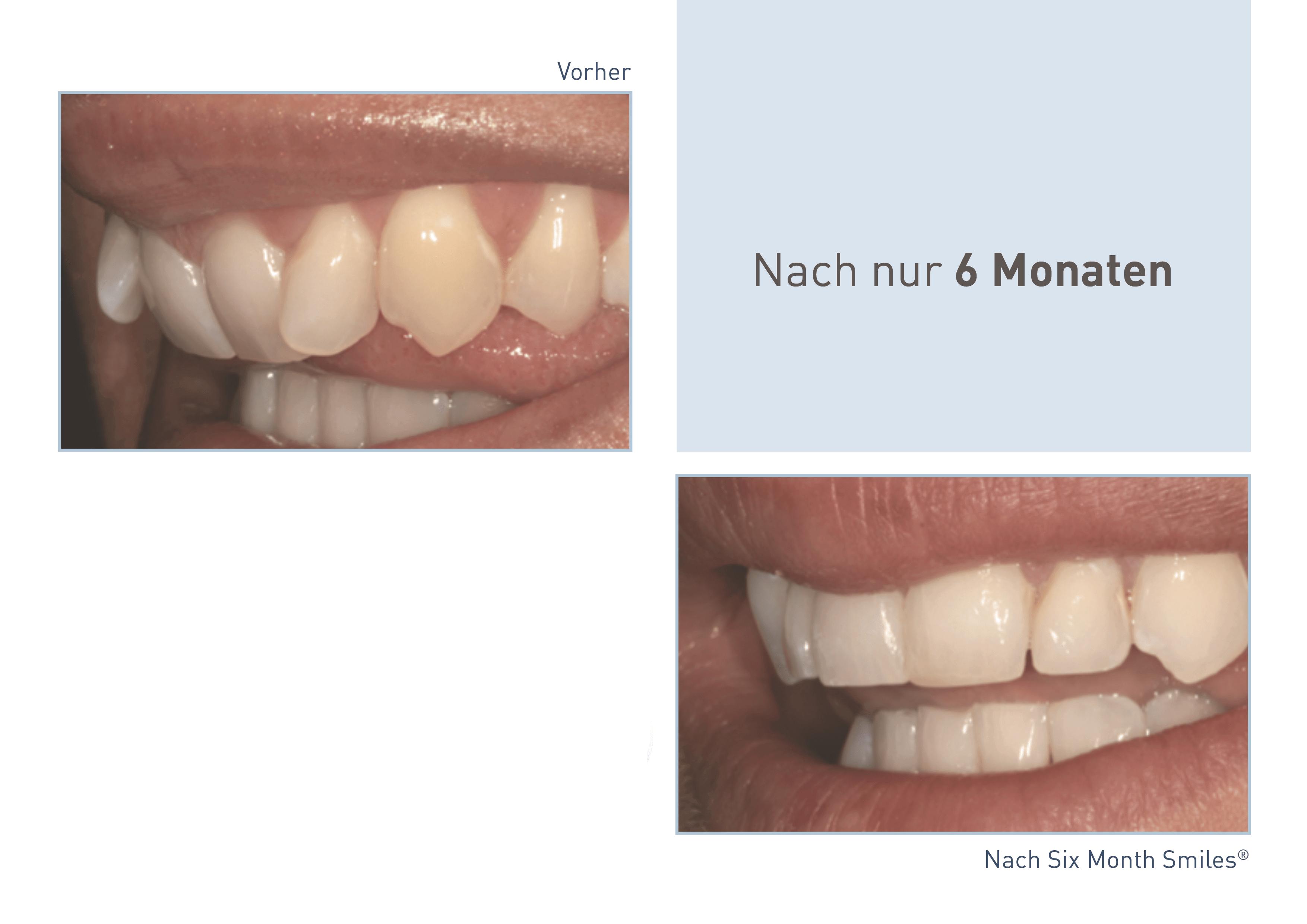 Erfolgreiches Behandlungsbeispiel von Six Month Smiles