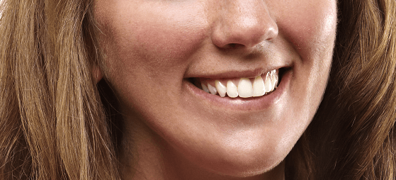 Junge Frau nach der Behandlung mit Six Months Smiles